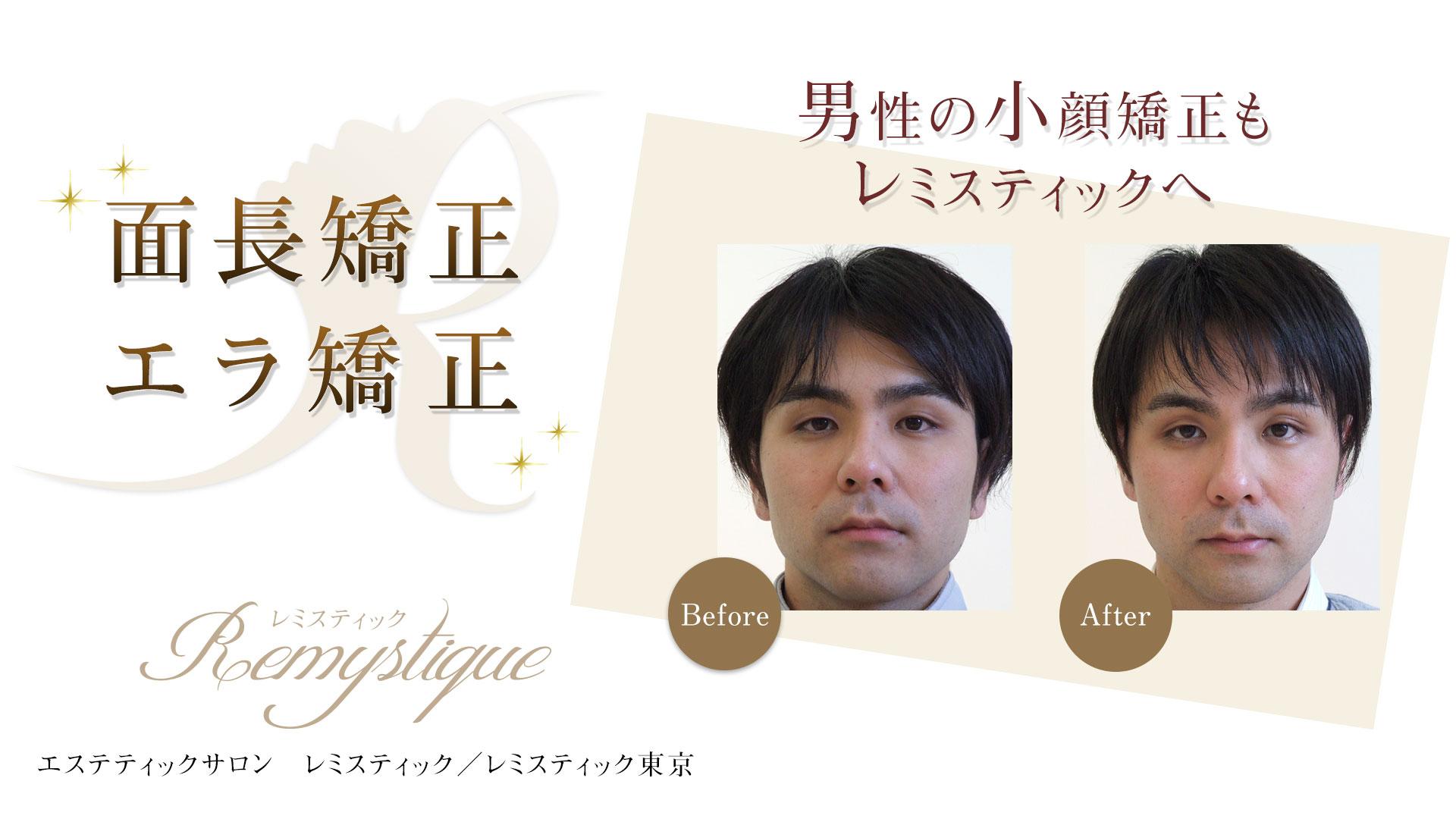 男性の小顔矯正もレミスティック東京へ 面長矯正・エラ矯正